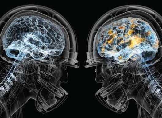 Exertion Mental Mental Exertion Slows